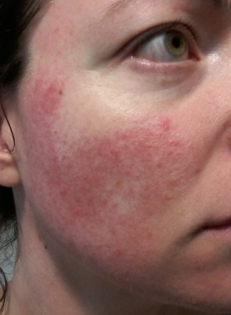 Rosacea on cheek - 1