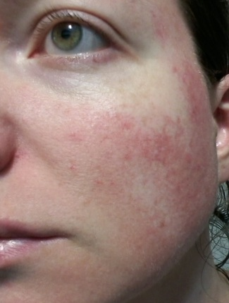 Rosacea on cheek - 2