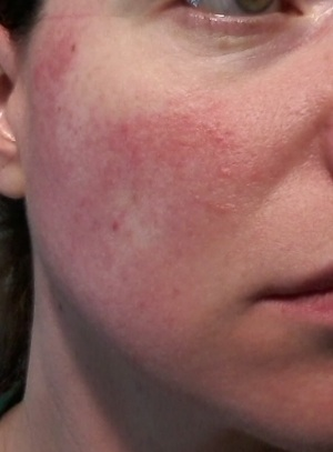 Cheek 1 -June 1, 2015 rosacea symptoms