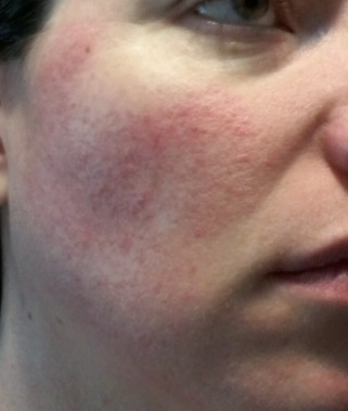 cheek 1 - June 2 2015 rosacea symptoms flush