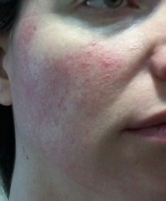 Cheek 1 - June 3 - Rosacea skin care