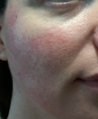 Cheek 1 - June 4 - rosacea skincare