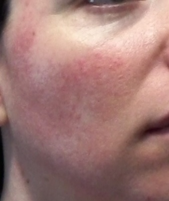 Cheek 1 - June 5 - control rosacea flushing treatment