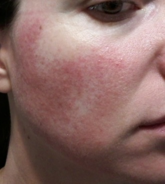 Cheek 1 - May 30 rosacea images