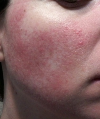 Cheek 1 - May 31 rosacea pictures