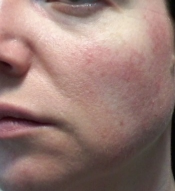 Cheek 2 -June 1, 2015 rosacea symptoms