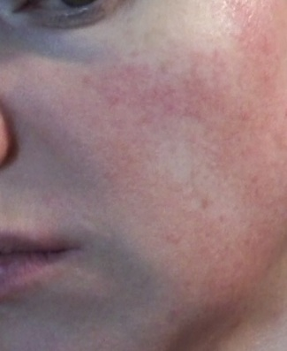 Cheek 2 - June 17 - non-laser light therapy rosacea treatment