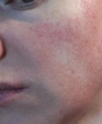 Cheek 2 - June 17 - non-laser light therapy rosacea treatment