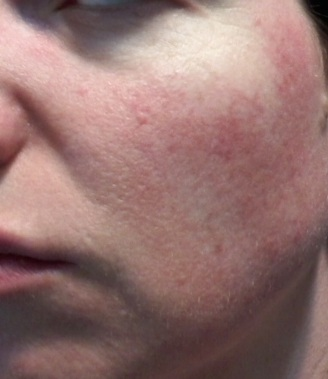 cheek 2 - June 2 2015 rosacea symptoms flush