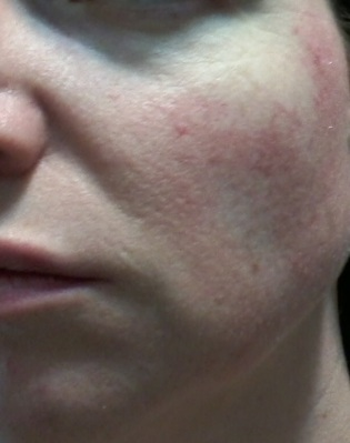 Cheek 2 - June 3 - Rosacea skin care