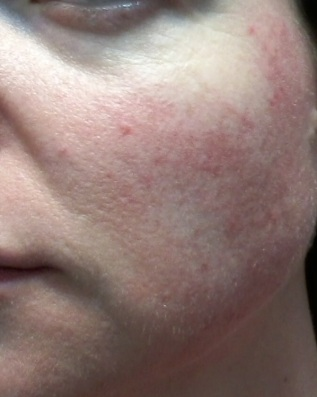 Cheek 2 - June 4 - rosacea skincare