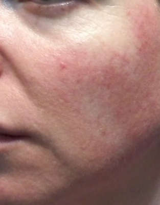 Cheek 2 - June 5 - control rosacea flushing treatment