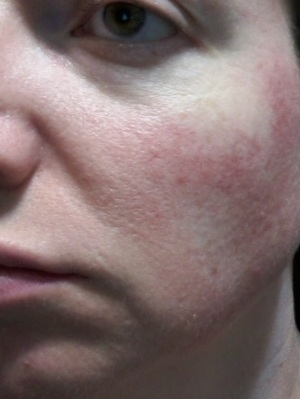 Cheek 2 - May 30 rosacea images