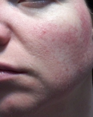 Cheek 2 - May 31 rosacea pictures