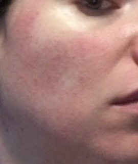 Cheek 1 - rosacea symptoms July 7 2015