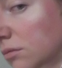 cheek 2 - Non-Laser LED Red Light Therapy natural rosacea treatment - July 19 2015