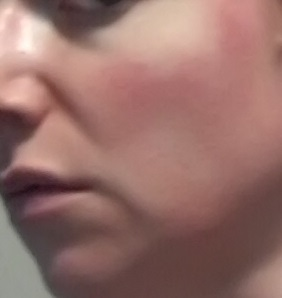 Cheek 2 - rosacea symptoms July 7 2015