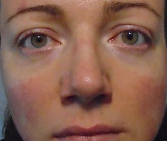 Alon Labs Rewind Rosacea skincare product 4 weeks