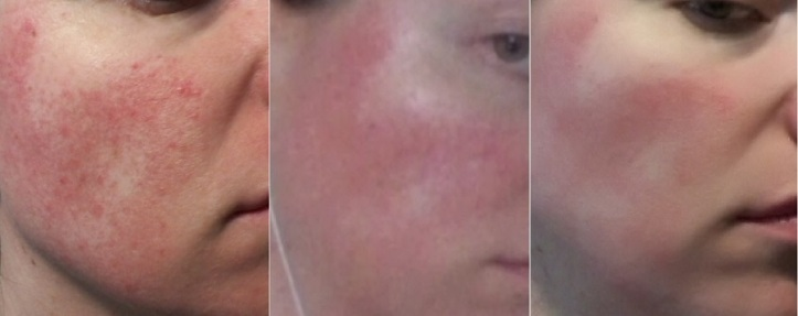 Rosacea symptoms progress JulieBC