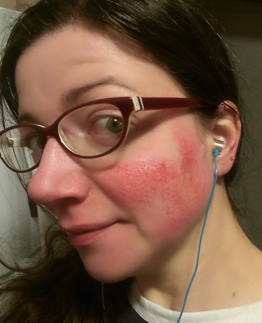 A day in the rosy life - Rosy JulieBC rosacea