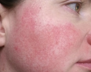 Rosacea symptoms (permanent redness, no flare-up)