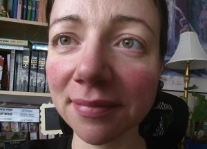 Rosy Cheeks from Rosacea