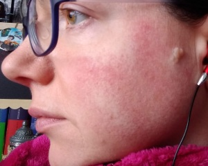 Bedrock Balm as Natural Skin Care for Rosacea Day 1